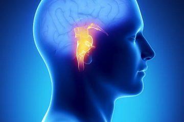 Brain Stem Implant, Auditory Implant, Deaf Implant